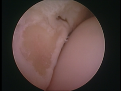 Eq arthroscopy2